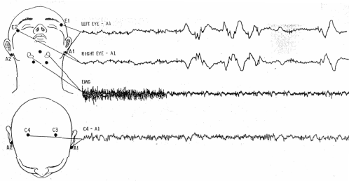 Schematic of EEG recording