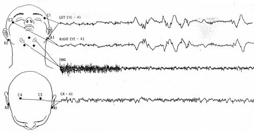 Schematic of EEG recording